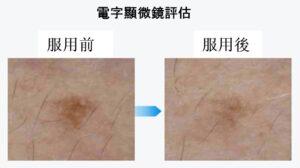 AmitA Fine對皮膚斑點和暗沉的功效
